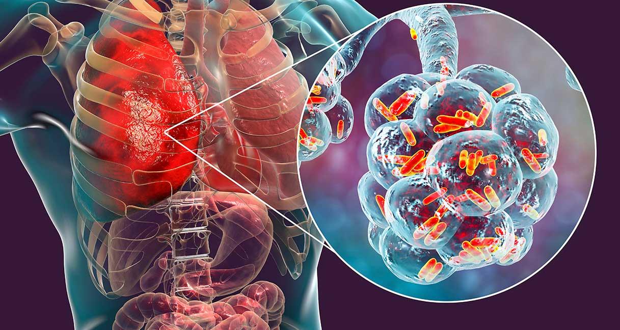 infección pulmonar por legionella
